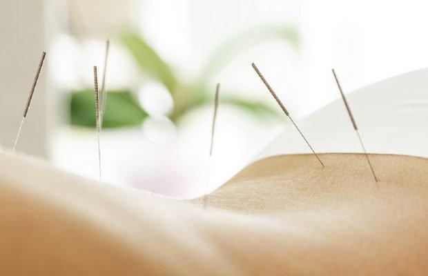 Akupunktur abnehmen