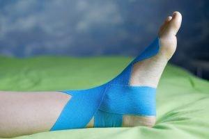 Fußgelenk tapen mit Leukotape