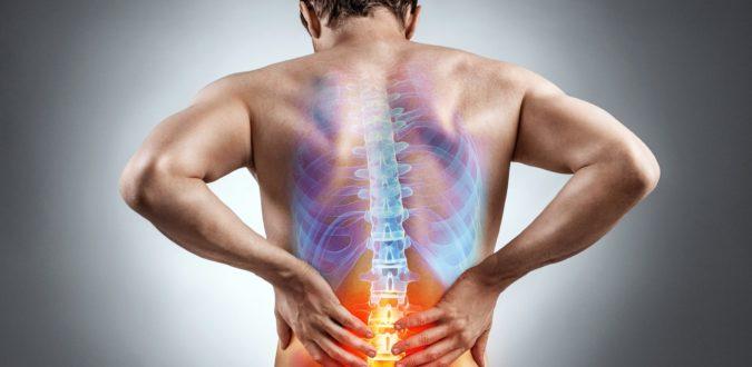 Wirbelsäule Bandscheiben Schmerzen