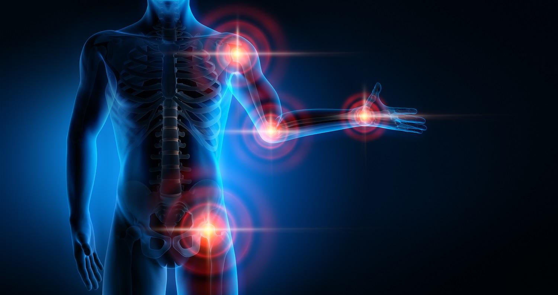 Gelenkschmerzen-Ratgeber