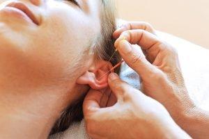 Nadeln im Ohr Akupunktur zum abnehmen