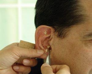 Mann mit Dauernadeln im Ohr